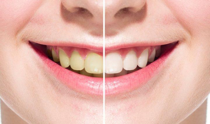 Dental Veneers Pros And Cons