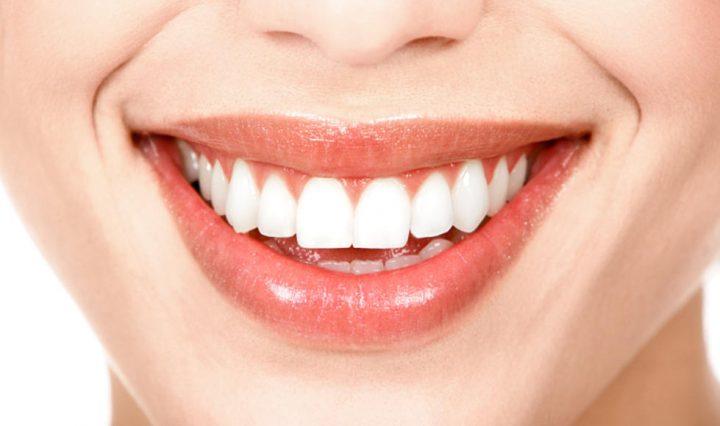 White Teeth Home