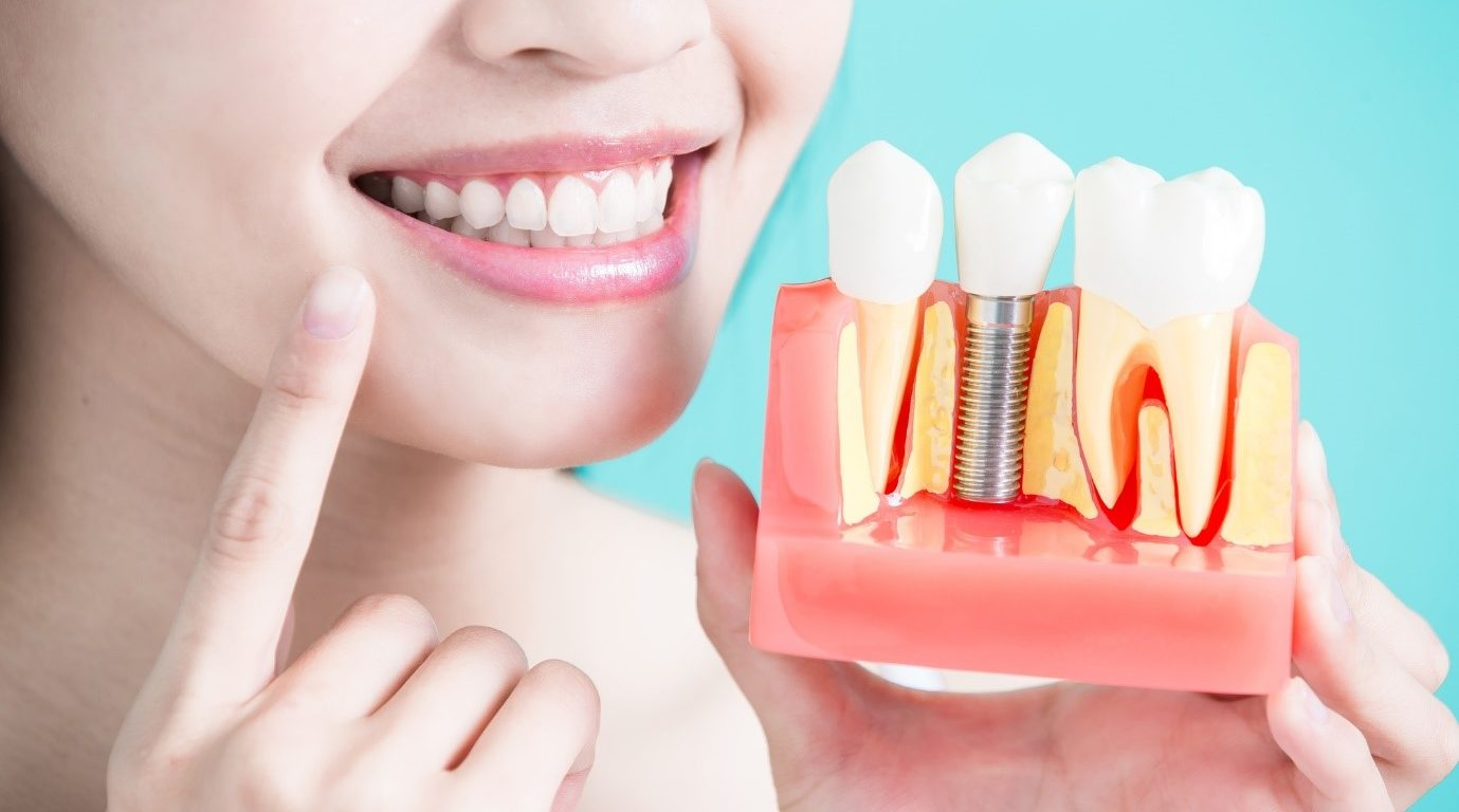 How Much Do Teeth Implants Cost